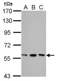 GTX100531 - MDM2