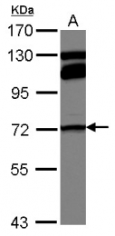 GTX100535 - MTHFR