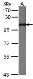 GTX100536 - Major Vault Protein