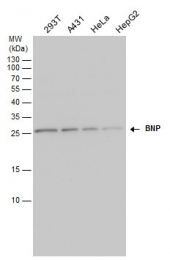 GTX100538 - Natriuretic peptides B