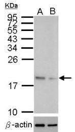 GTX100554 - Superoxide Dismutase 1 / SOD1