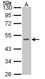 GTX100572 - Cytokeratin 15