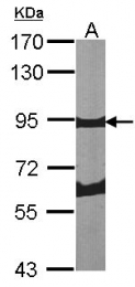 GTX100602 - Periostin