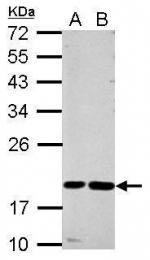 GTX100613 - Cystatin-F