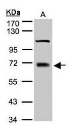 GTX100617 - TRIM25 / RNF147