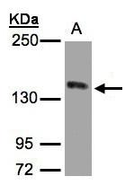 GTX100637 - HGF receptor