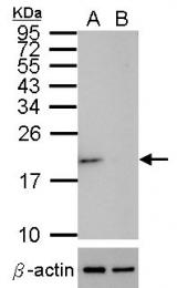 GTX100659 - Superoxide Dismutase 1 / SOD1