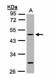GTX100693 - Cytokeratin 20