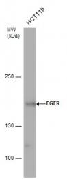 GTX100725 - EGFR / ERBB1