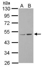 GTX100784 - Lysyl oxidase