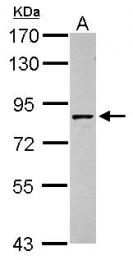 GTX100803 - Granulins (GRN)
