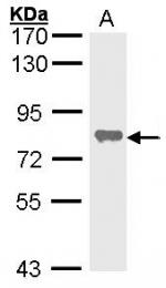 GTX100817 - Alkaline phosphatase / ALPL