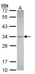 GTX100865 - Synaptophysin / SYP