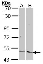 GTX100927 - Angiopoietin-2