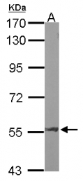 GTX100928 - Angiopoietin-2
