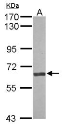 GTX100991 - Angiopoietin-2