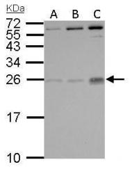 GTX101023 - Placenta growth factor / PGF