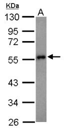 GTX101028 - Presenilin-1