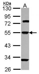 GTX101054 - Alpha-1-antitrypsin