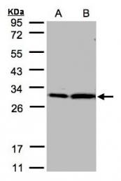 GTX101075 - 14-3-3 protein zeta/delta