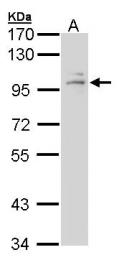GTX101120 - Glucocorticoid receptor
