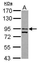 GTX101121 - Glucocorticoid receptor