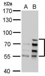 GTX101126 - Lamin-A/C (LMNA)