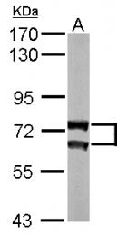 GTX101127 - Lamin-A/C (LMNA)