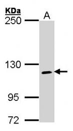 GTX101136 - CD220 / INSR