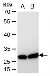 GTX101145 - HSPB1 / HSP27