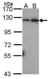GTX101150 - NFKB2 / NF-kappa-B p100/p52