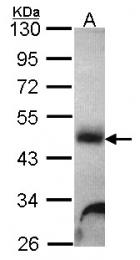 GTX101178 - Alpha-galactosidase A