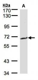 GTX101198 - CD224 / GGT1