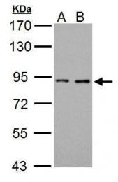GTX101199 - Prothrombin (F2)