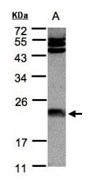 GTX101211 - Ferritin light chain (FTL)