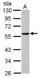 GTX101232 - Dihydrolipoyl dehydrogenase