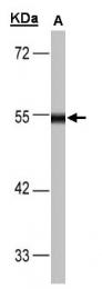GTX101245 - Dihydrolipoyl dehydrogenase