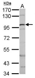 GTX101254 - Catenin beta-1