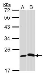 GTX101262 - C-reactive protein (CRP)