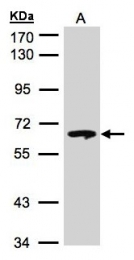 GTX101267 - Glucosylceramidase