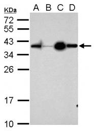 GTX101306 - Apolipoprotein D (Apo D)