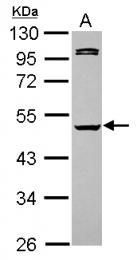GTX101322 - Caspase-1