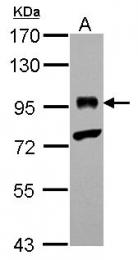 GTX101338 - Bcl-6