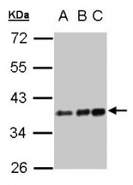 GTX101342 - CD14