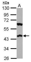 GTX101357 - Cannabinoid receptor 2