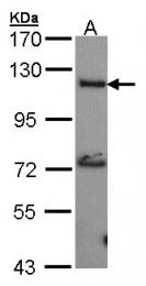 GTX101360 - Adenylate cyclase type 2