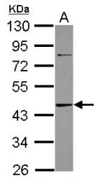 GTX101372 - Adenosine kinase (AK)