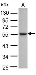 GTX101375 - Alcohol dehydrogenase 1C (ADH3)