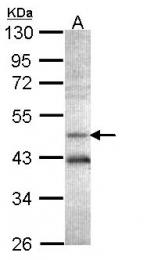 GTX101387 - AdoHcyase (AHCY)