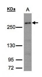 GTX101401 - CAD Protein